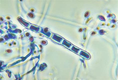 The Mycelium Connection: Fungal Word Friday: Dermatophyte