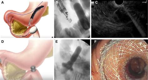 EUS-guided gastroenterostomy is comparable to enteral